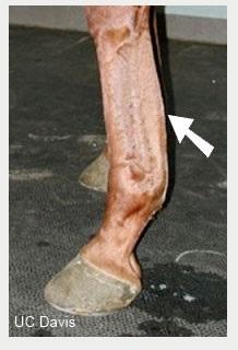 tendon injury